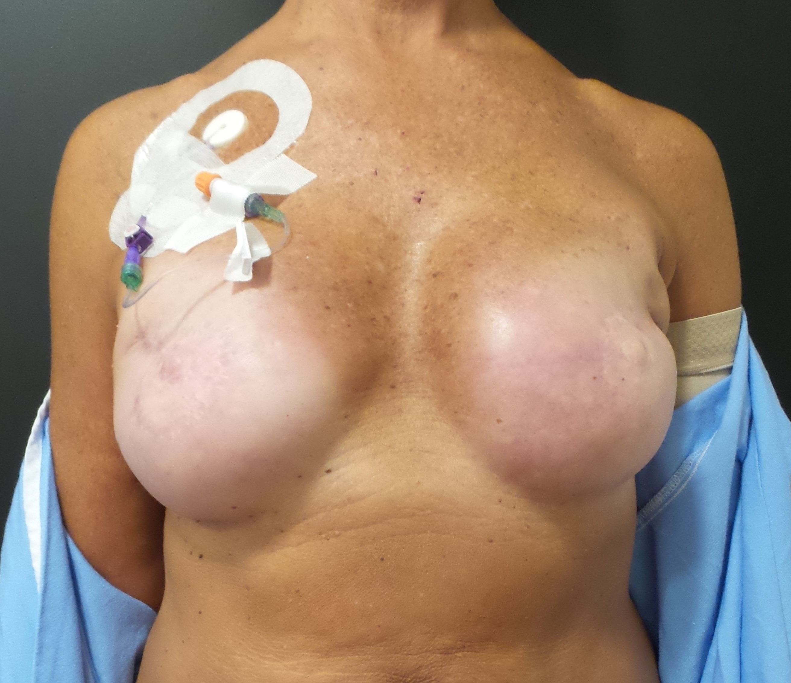 Hard Left Breast Implant after Radiation with Infection