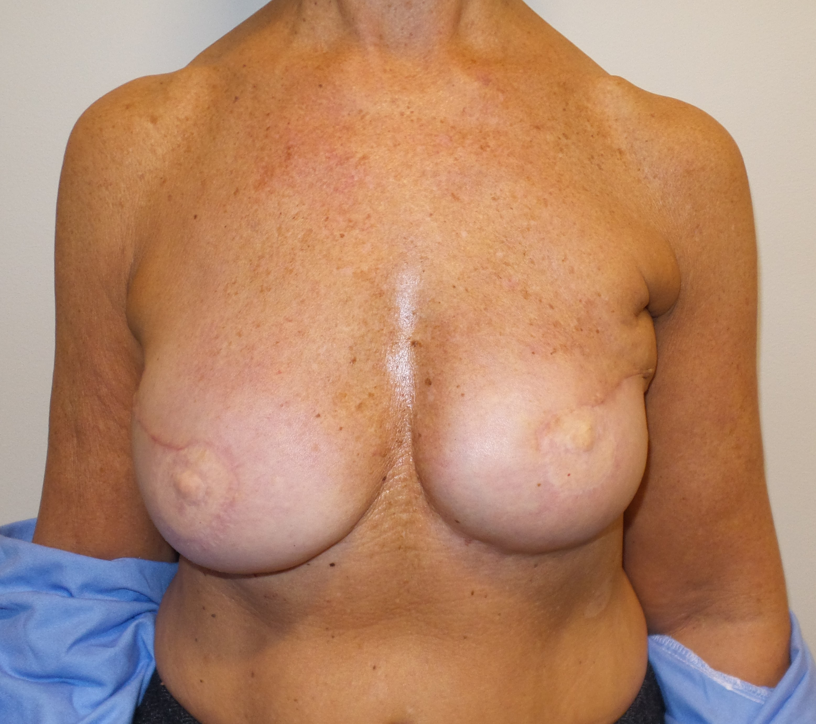 Bilateral DIEP Flaps after Breast Radiation