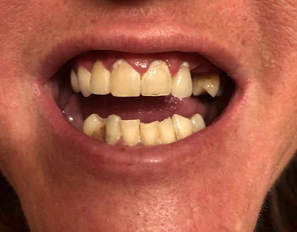 before All-on-4 dental implants