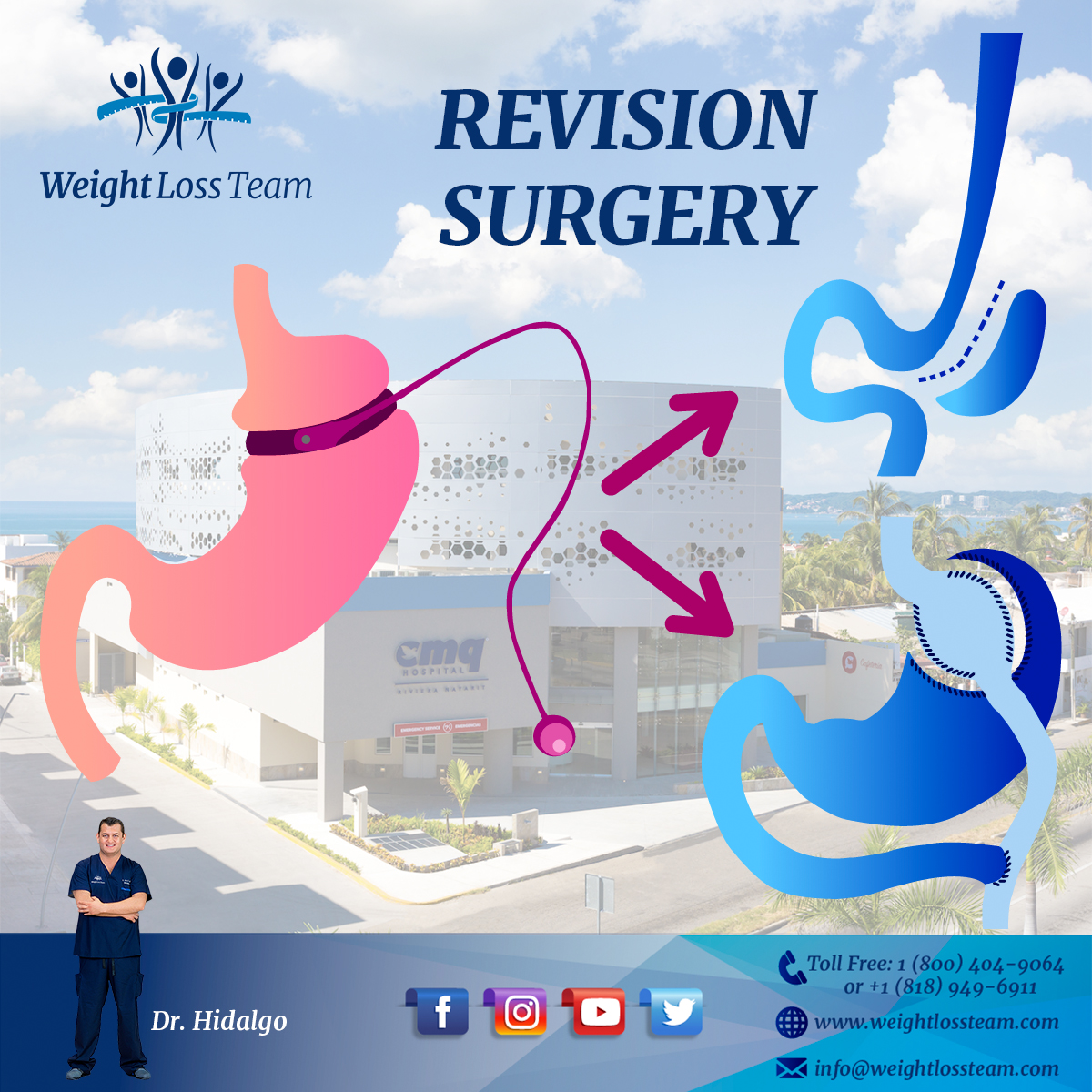 bariatric revision surgery