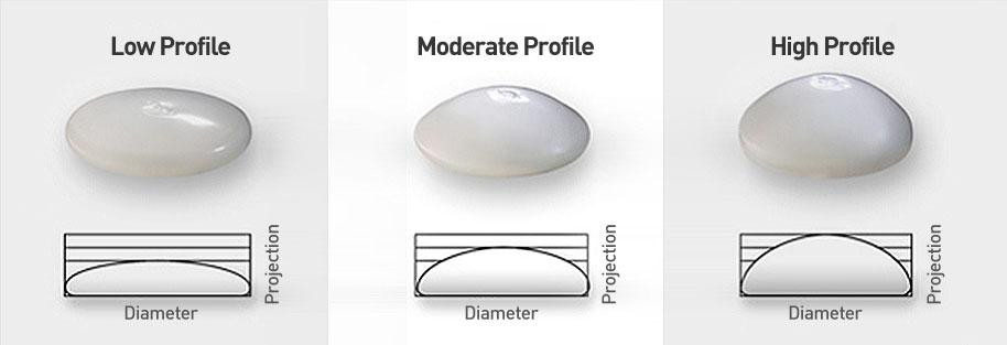 Breast augmentation profile