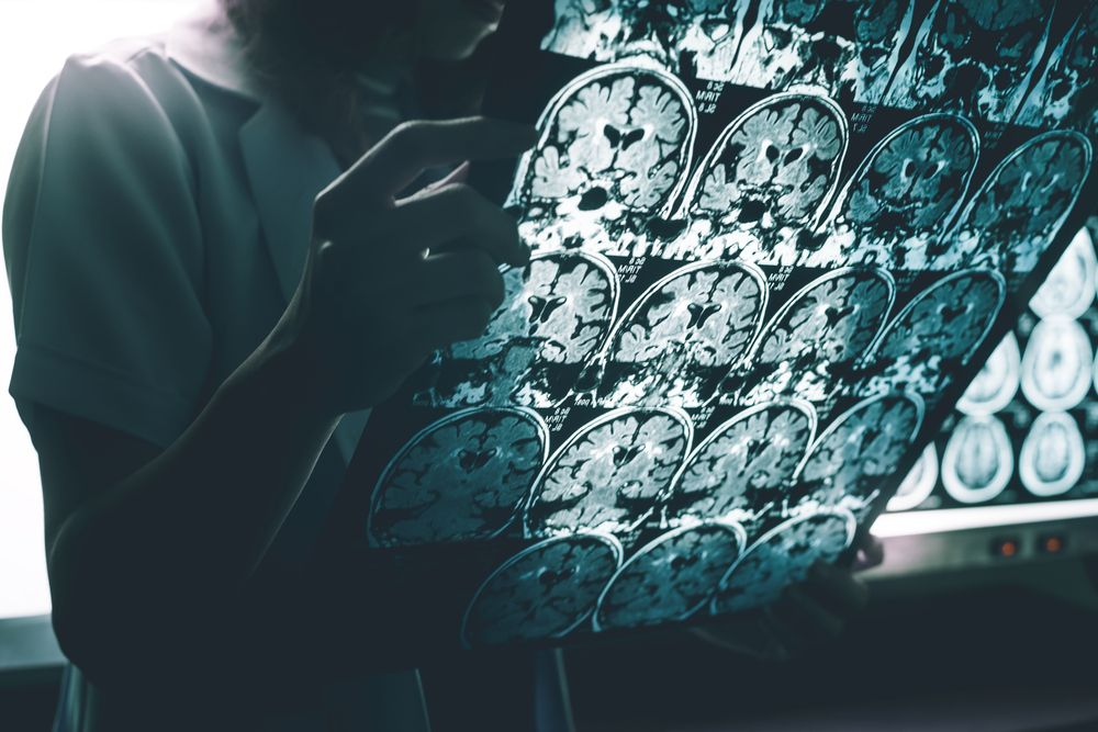 Lesión Cerebral y Depresión