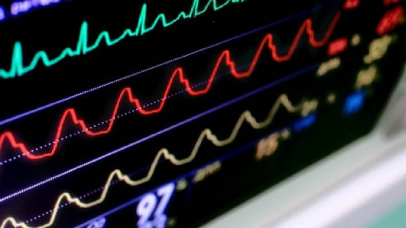 Monitores cardíacos y un riesgo cubierto