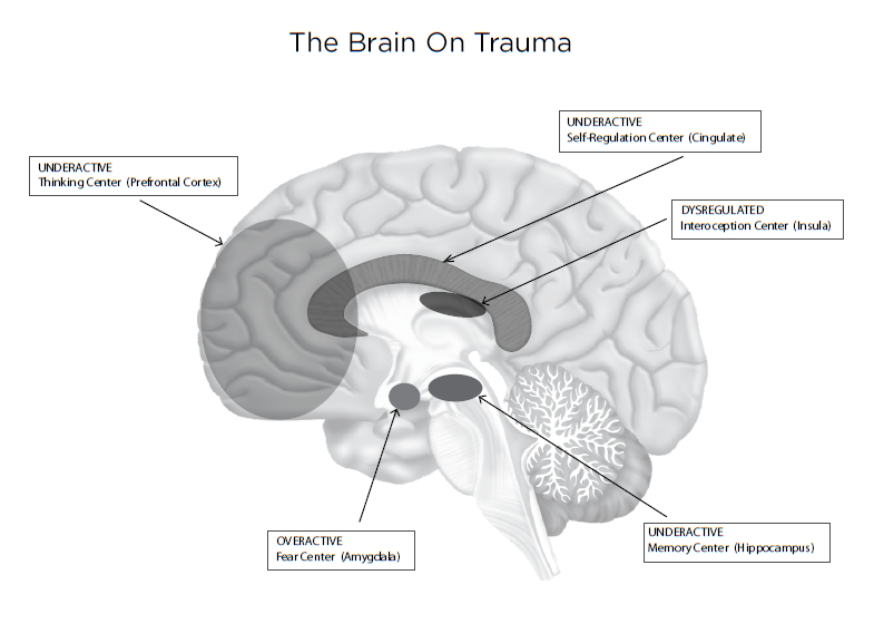 Trauma Toolbox Brain Copyright Image