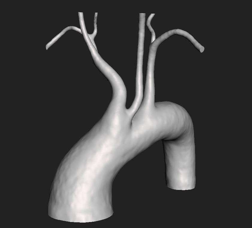 Bovine Arch - Aorta - embodi3D.com