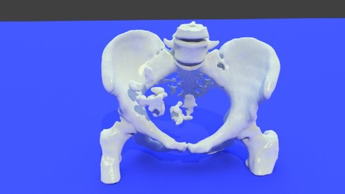 Pelvic Bones (female pelvis) - Bone model STL file from converted CT scan