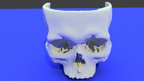 Free 3D Printed Human Anatomy Model STL Files for Medical 3D