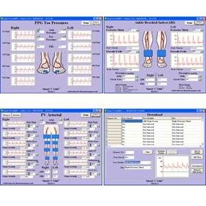 Software V-Link O Fetal Link para PC Windows para mini doppler ES100V3 Cat HAD-F-VLINK Hadeco