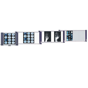 Negatoscopio triple LED Ultradelgado, 6,500 LUX Cat FSV-XR-3 Film Slim Viewer