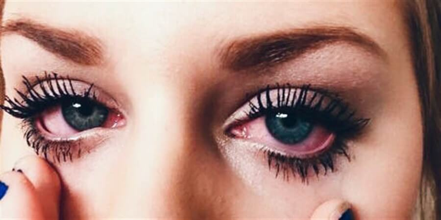 Do You Struggle With Sensitive Eyes Tips For Choosing The Right Eye