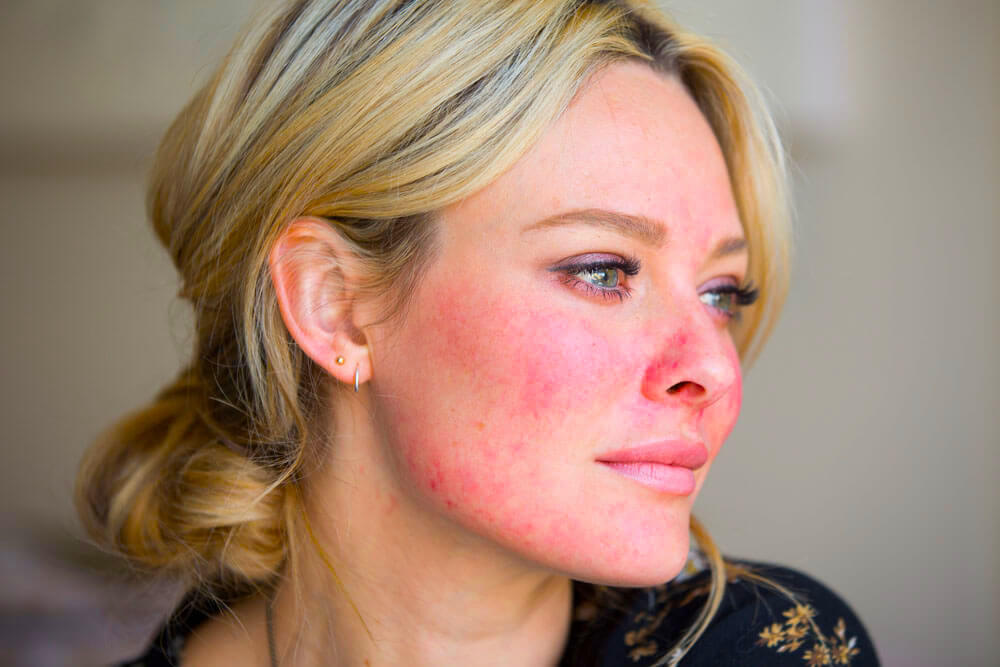 dating someone with rosacea Lightstim - professional rosacea light - relieves redness, bumps, and symptoms of rosacea i find a plain zinc cream, the kind used for babies nappy rash, is great for calming redness it's an anti-inflammatory.
