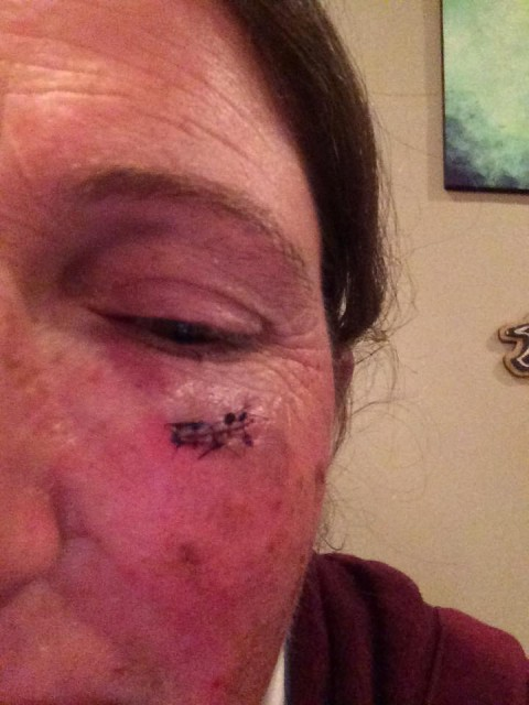 Nothing like bringing home some war-wounds. Heal quickly, Gina! Photo from Gina Economu's Facebook page.