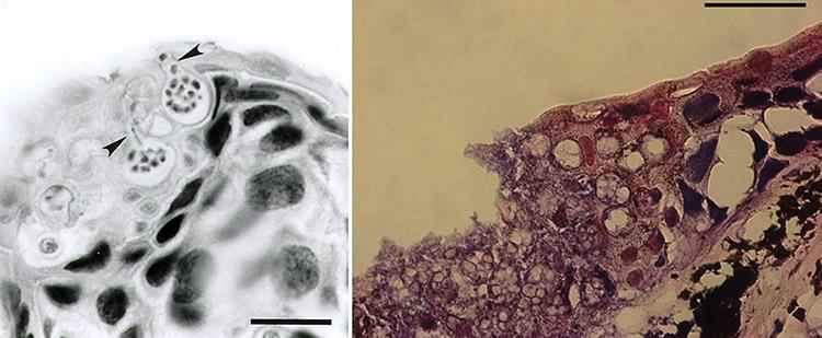 Chytrid Fungus