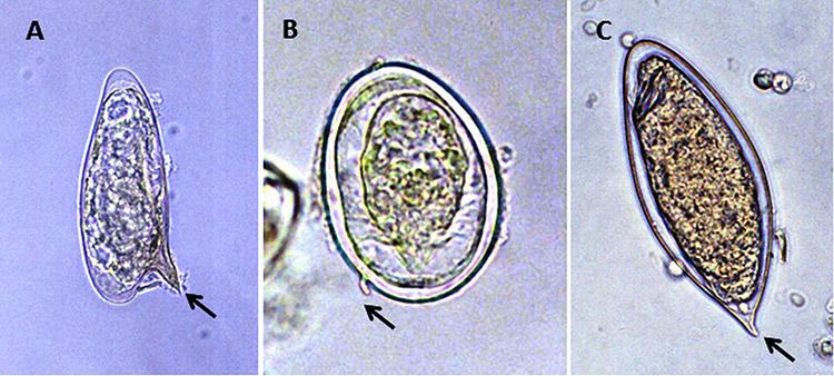 Schistosoma Eggs
