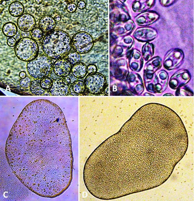 Myxozoans