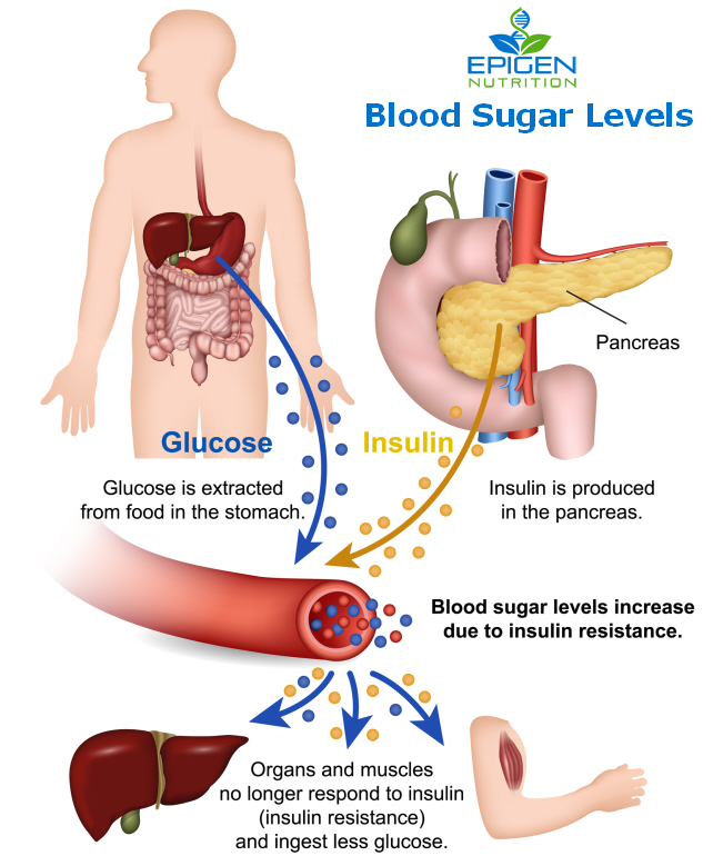 What is high blood sugar