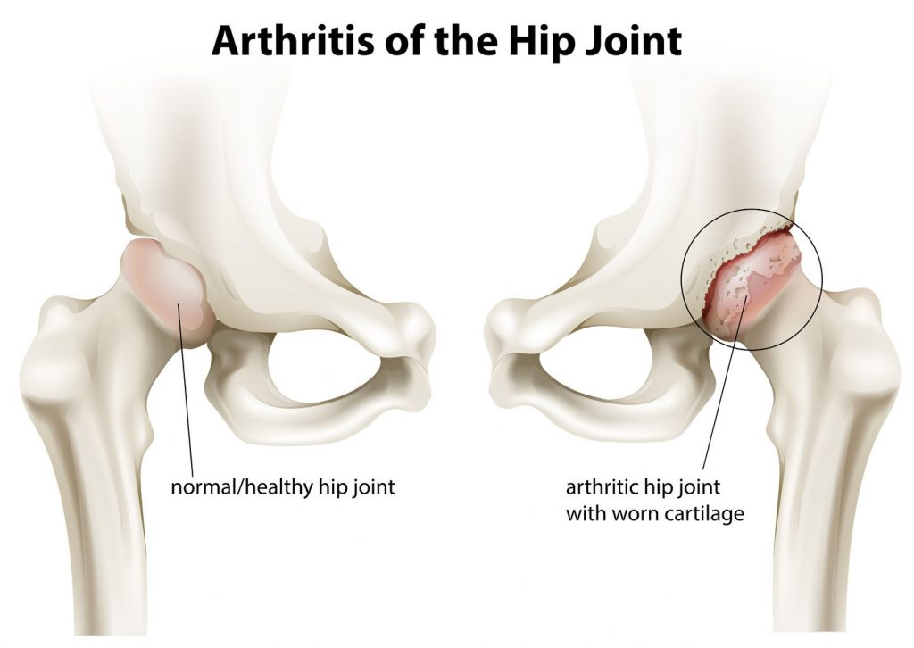 degenerated hip, LLD, short leg, OA, osteoarthritis
