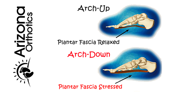 plantar fasciitis arch up vs arch down