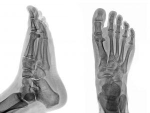 26 bones per foot