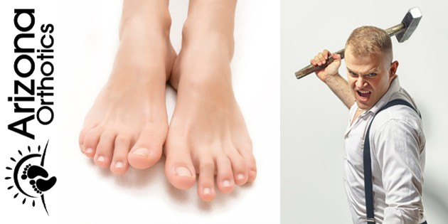 Man with Hammer & picture of Hammertoes