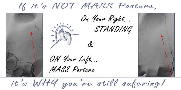 Standing versus MASS Posture 3-D Foot Impression