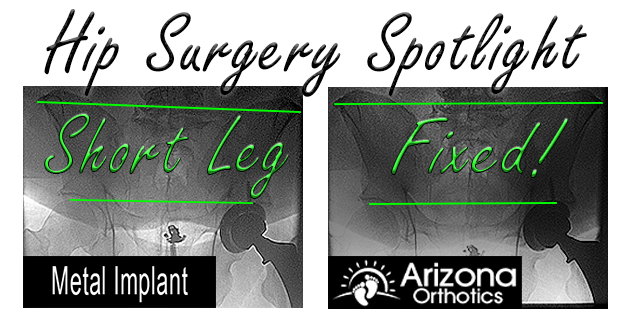 before and after xray of post operative hip surgery short leg correction