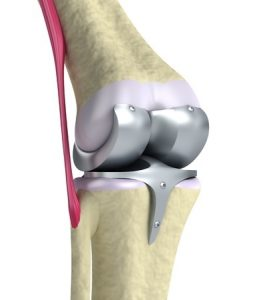 knee - hinge joint