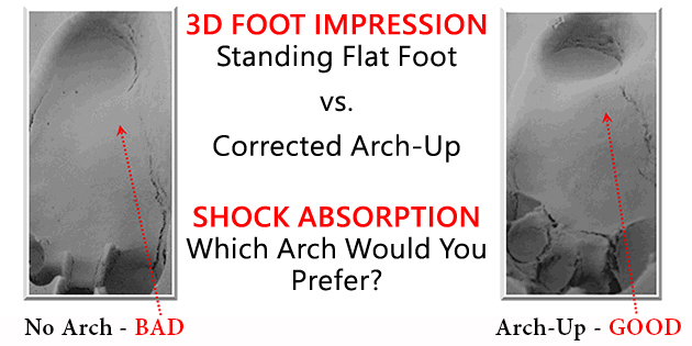 computer scanned custom foot orthotics