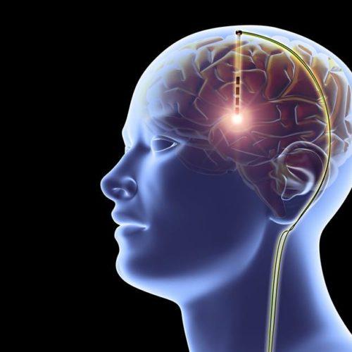180423-brain-implant-mn-1350_f3274dd9147883f86f8f426a49938f01.nbcnews-fp-1200-630