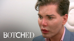 Rodrigo Alves is told his nose could fall off.