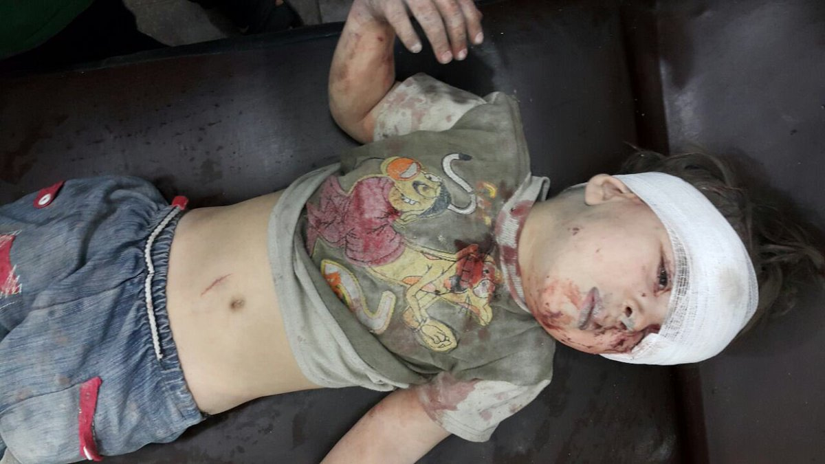 A photo of Omran in bandages after the incident