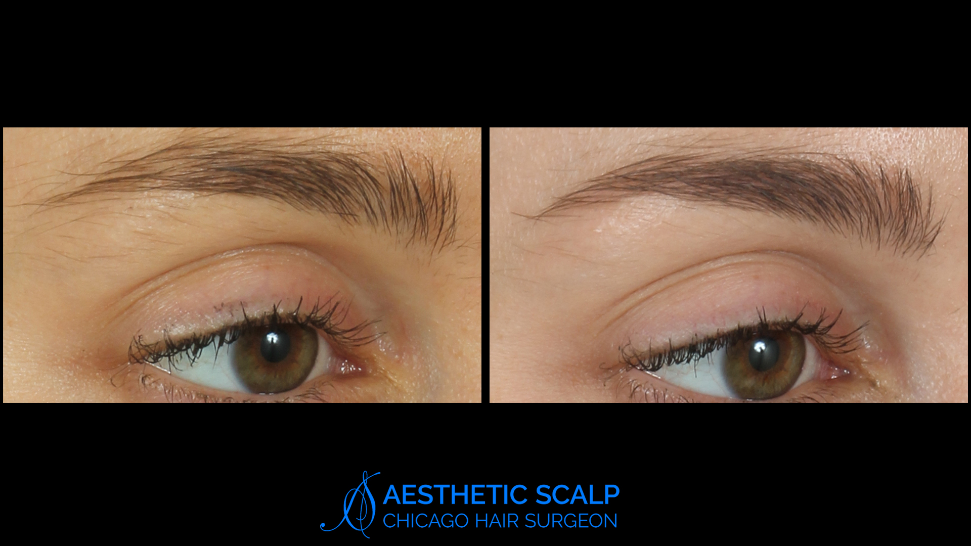Treating Thinning Eyebrows Chicago Hair Surgeon