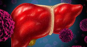 042115 livercancer thumb article