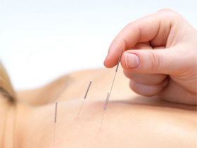 Ciz health 0428 acupuncture 2 article