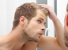 Man looking in mirror hair loss article