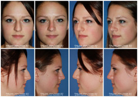 Rhinoplasty patient portand oregon 300x211 article
