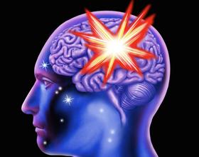Brain stroke 160122 article