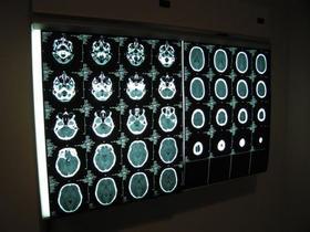 Fl matt hobbs   brain scan article