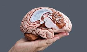 Cannabis and traumatic brain injury article