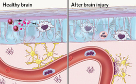 Neuroimmunitypanel1and2nocopyb 310px article