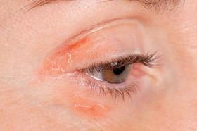 Trash psoriasis around the eye article