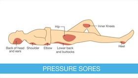 Pressure sores serious complication of ms 1440x810 article