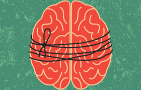 Brain string article