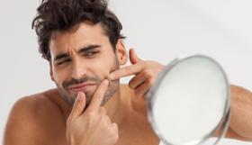 Treat acne article
