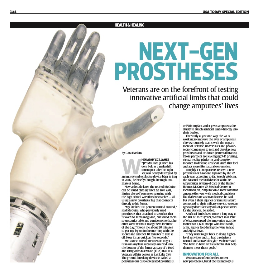 Next gen prostheses usa today