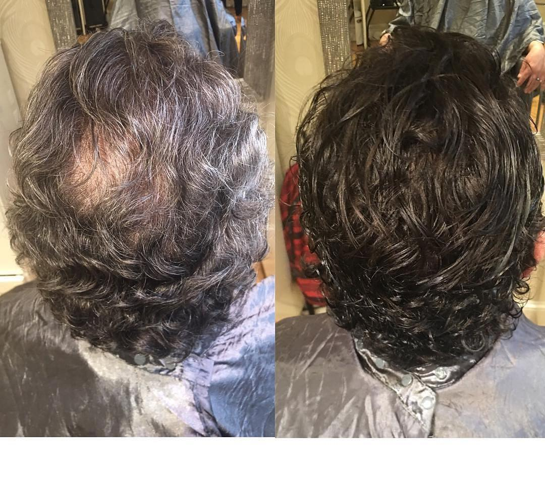 extensions for men with male pattern baldness boston salon