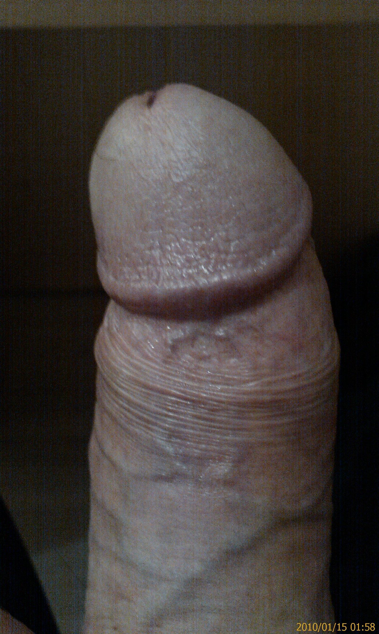 My Penis Head 10