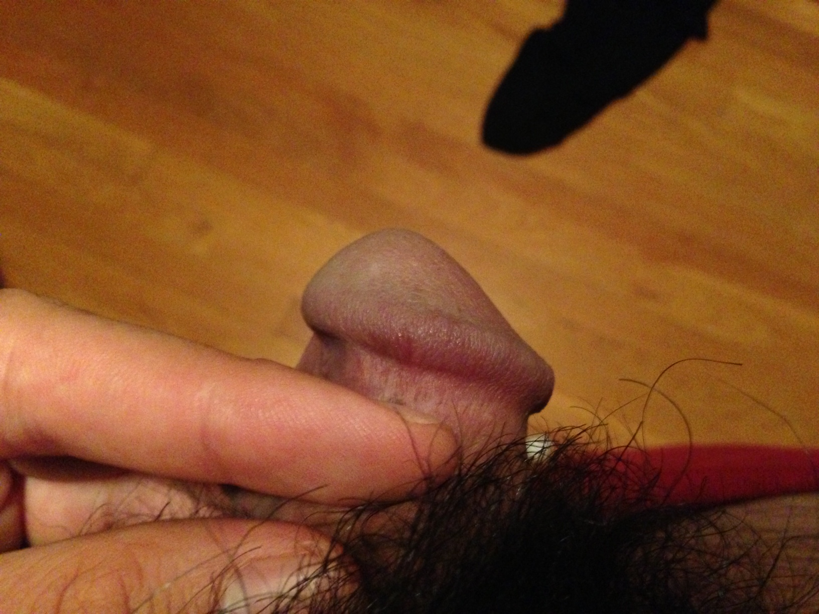 Small Brown Spot On Penis 12