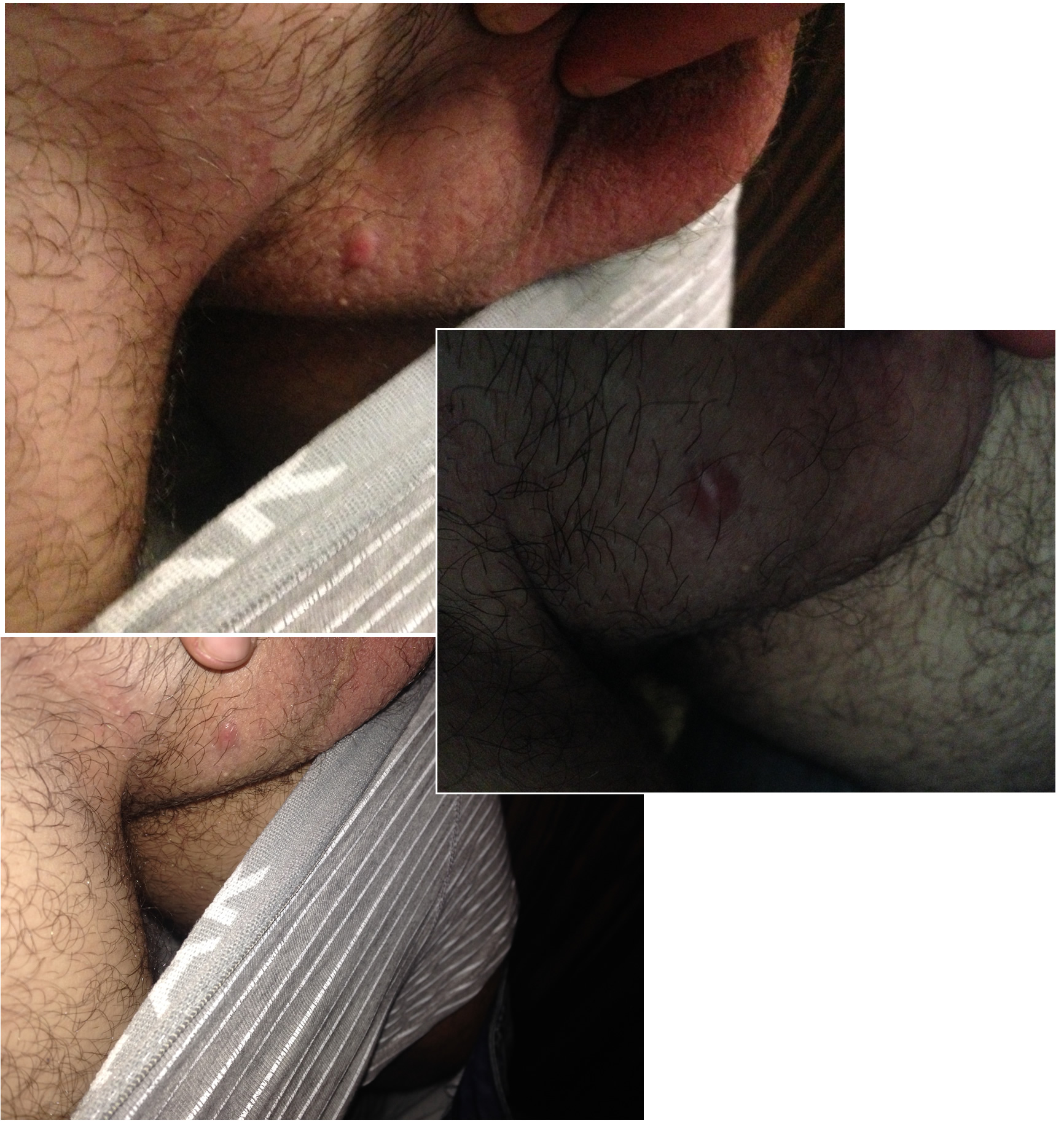 Testicle Sack Pictures 99