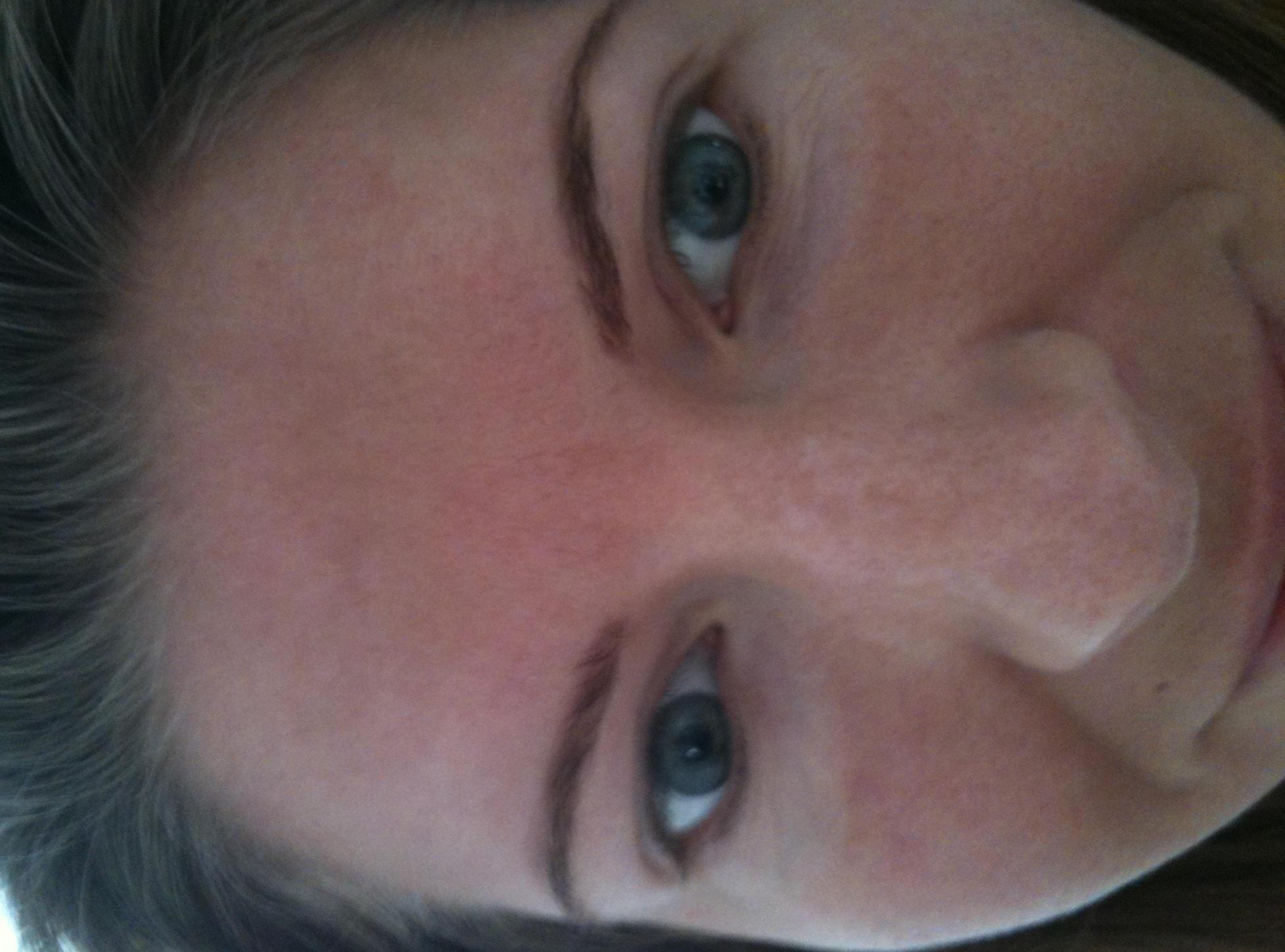 i noticed that i have developed white marks under my eyes